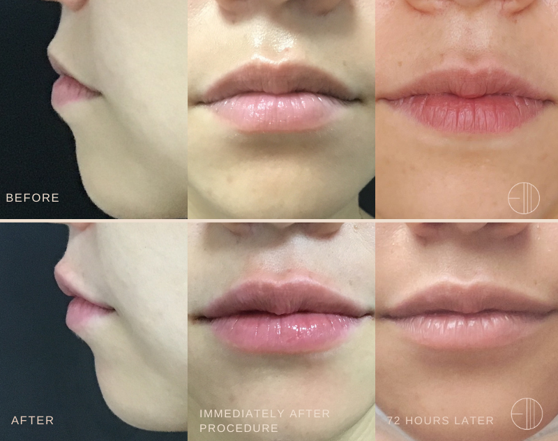 dermatologist-levin-lip-fillers-before-and-after